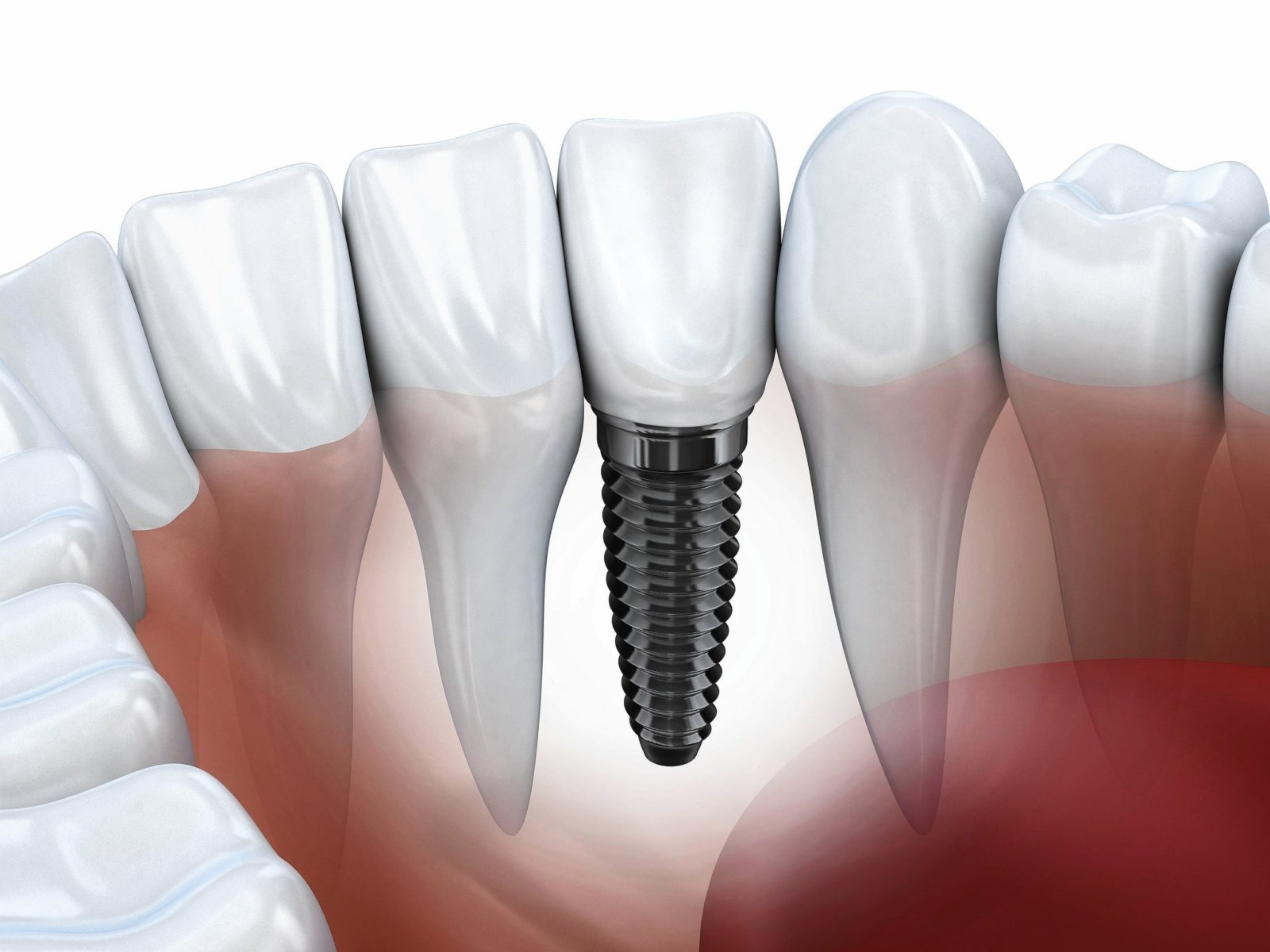 sc-hlth-0715-dental-implants-20150709